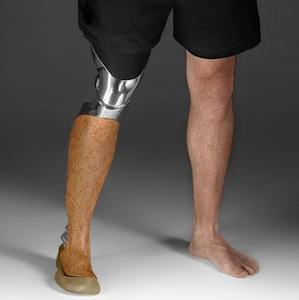Custom Designed Prosthetic Legs